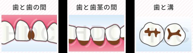 歯と歯の間・歯と歯茎の間・歯と溝