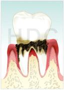 中等歯周病