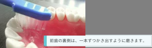 前歯の裏側は、一本ずつかき出すように磨きます。